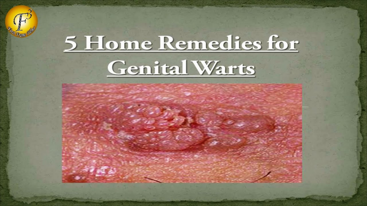 aldara instructions for genital warts
